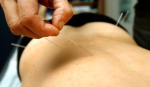 acupuncture-maux-de-dos