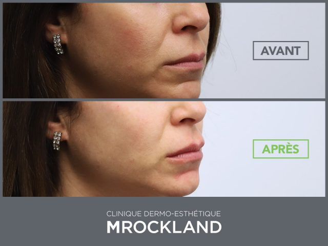 Botox injectable